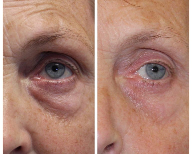 Trifractional eye bag pic for new blog