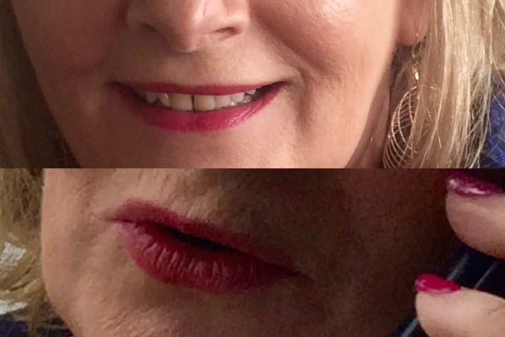 Hydroporation client of Skin Essentials by Mariga before and after a course of three treatments . lines are dramatically reduced and skin is healthier, rejuvenated and smoother. Top up of a single treatment will be required after 3-6 months. Skin Essentials by Mariga skin clinic, Wexford.