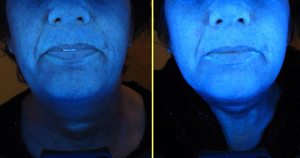 Before and after a course of 6 Skin Essentials by Mariga brightening peels, image taken under skin scanner to show improvements from deep in the skin.