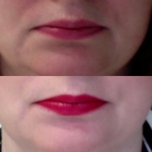 before and 1 week after the application of 2 shots - one either side - in the video above.