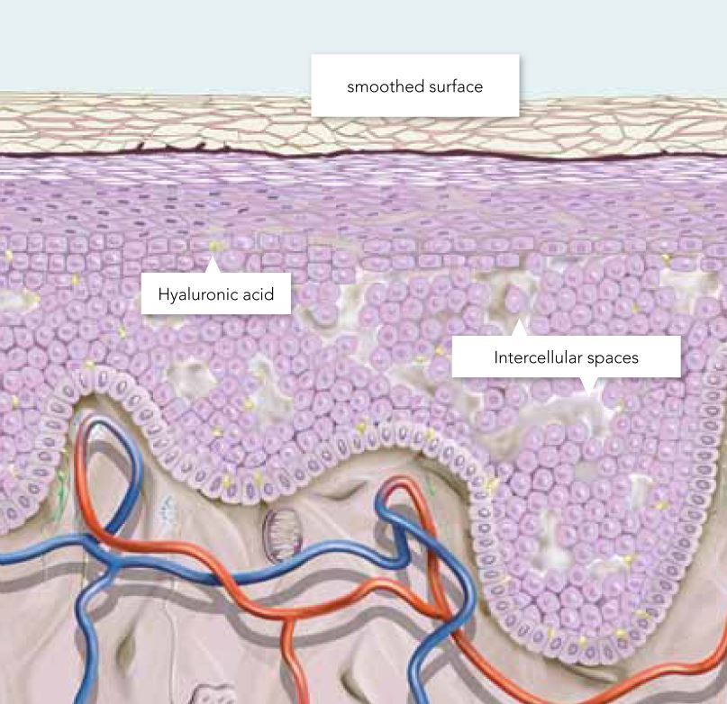 Graphic showing the stages of treatment inside the skin.