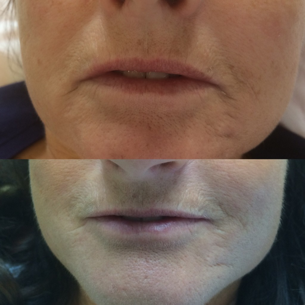 Hydroporation lip lifting before(left) and after course of 3