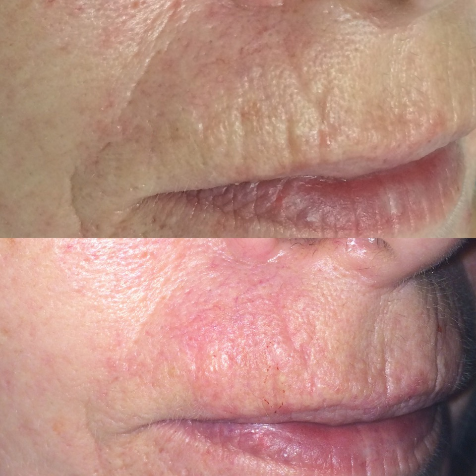 Before and after photos of lip lines / smokers lines treated with Hydroporation needle-free wrinkle plumping hyaluronic acid fluid. Treatment performed by Mariga at Skin Essentials clinic, Wexford.