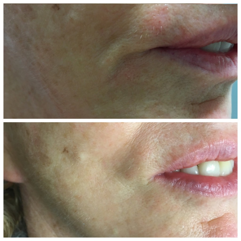 Before and after photo of a Skin Essentials by Mariga, Wexford client showing the remarkable results visible on lip lines from a series of hydroporation treatments. These results will last up to 4 months and can be topped up by a single session at that time or left to fade out.