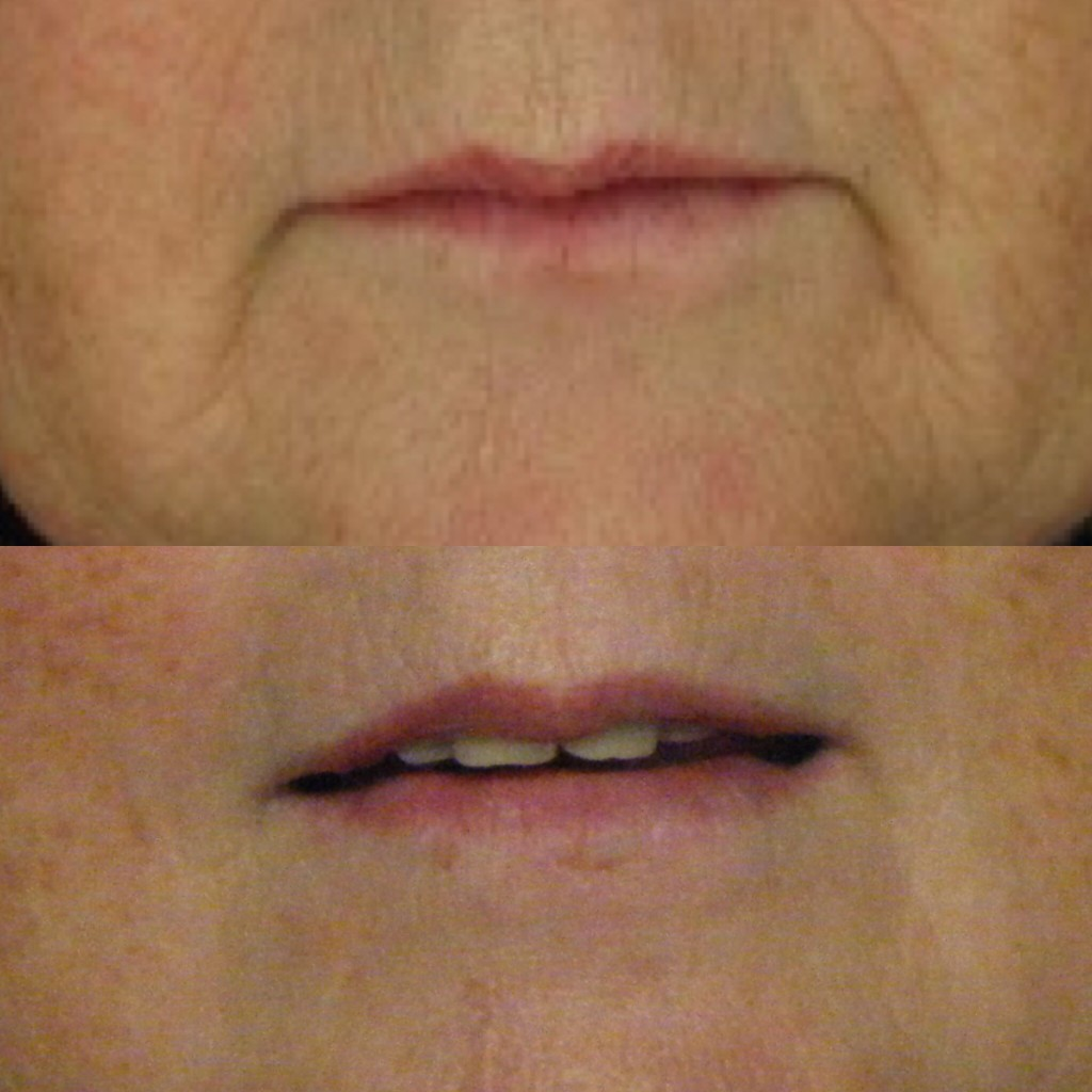 Before (top) and after(bottom) course of 6 microneedling treatments at Skin Essentials by Mariga, Wexford.