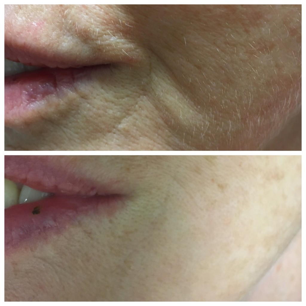 Before and after hydroporation for lip and mouth lines, course of 3 plus one top up session from Skin Essentials by Mariga skin clinic Wexfor
