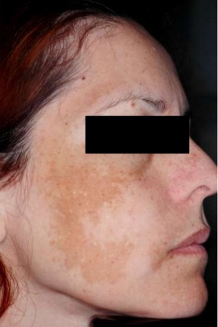 comprehensive-overview-of-melasma-2-638