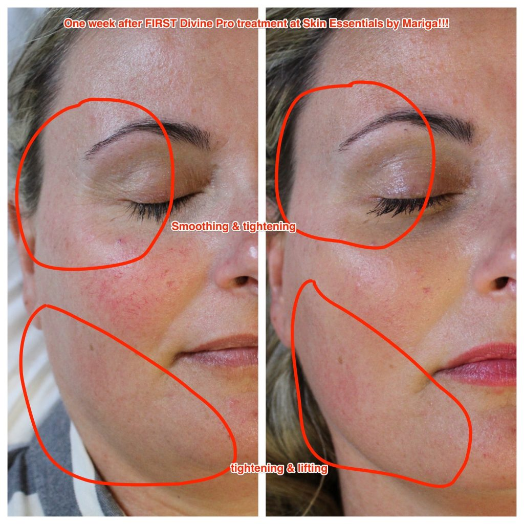 Before and after pics showing crows feet reduced jawline tightened and old acne scars smoothed. Treatment performed was trifractional resurfacing at Skin Essentials by Mariga, Wexford using the Divine Pro technology