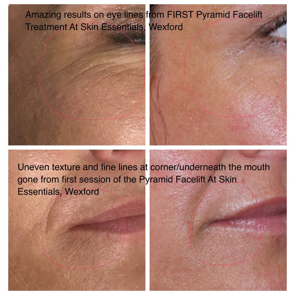 Before and after pics of eye and lip lines following first pyramid facelift treatment