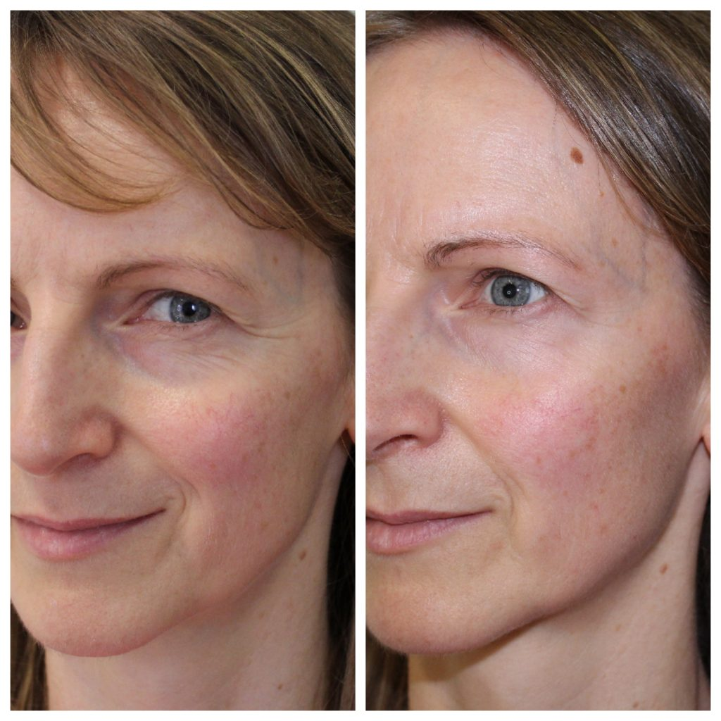 Amazing results from the very first treatment on eye lines and overall texture. Before and after photo following pyramid facelift treatment. Lines dramatically reduced