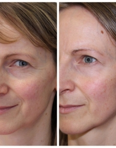 Norma S3 before & after ONE pyramid facelift 3 weeks apart