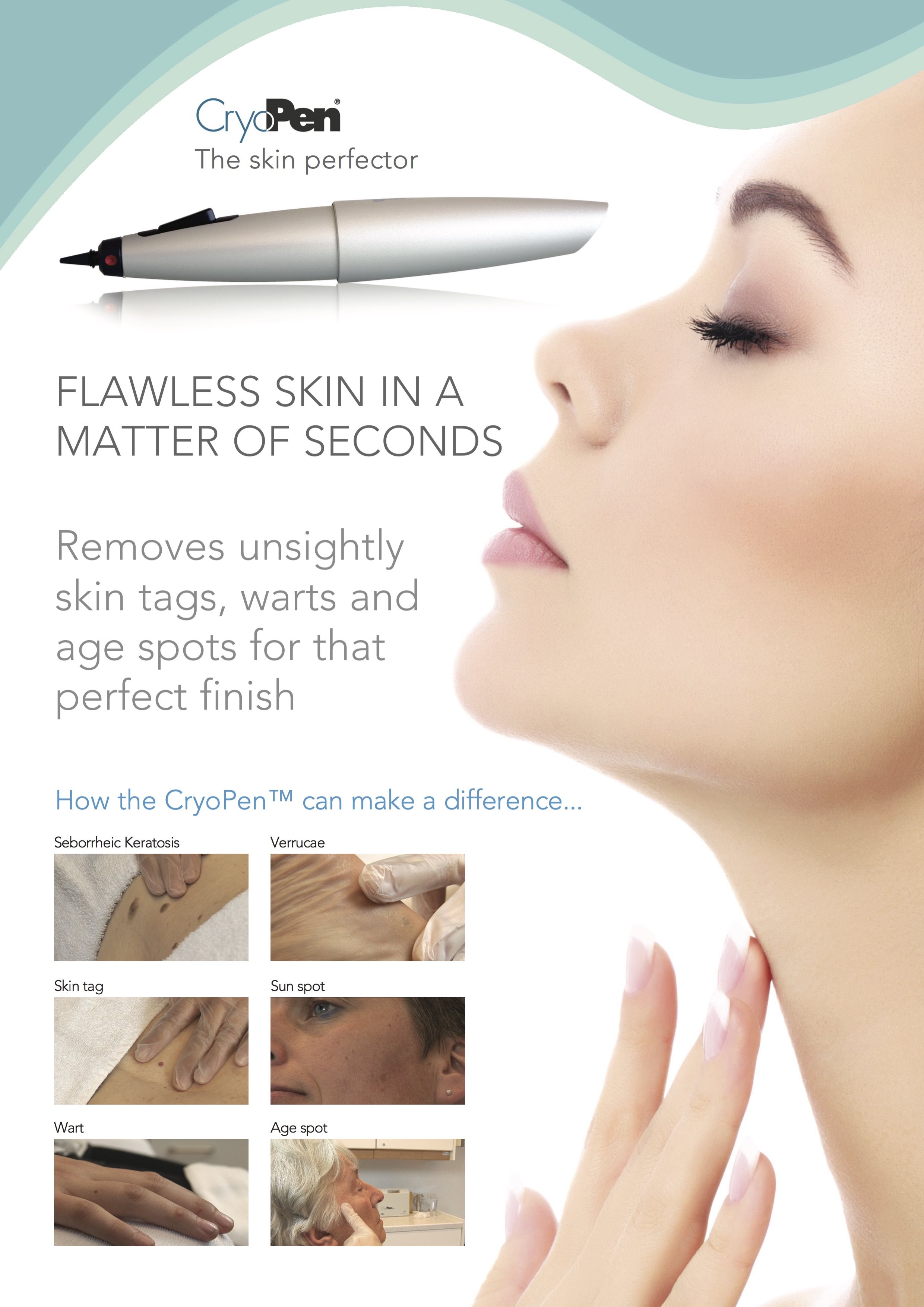 Age Spot Milia Skin Tag Red Vein Removal