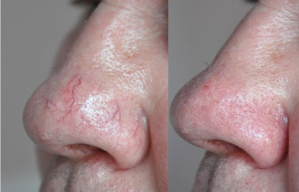 Treatments for men, red vein removal, skin tag removal, wexford