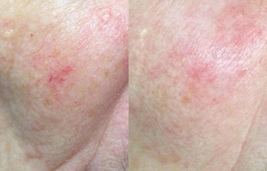 Red vein treatment of capillaries before (left) and after first session