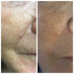 Milia removal by diathermy, before and after one treatment.