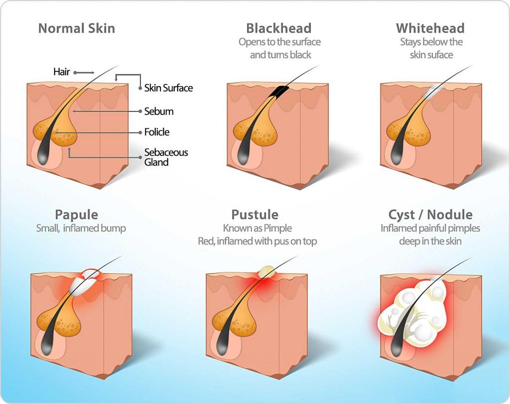 diagram of pore congestion types including acne, blackhead, whitehead, pustule