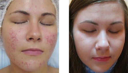 trifractional skin resurfacing, acne scarring, skin essentials by mariga, wexford