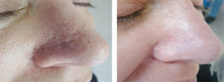 Acne scarring, skin resurfacing, skincare, skin essentials by mariga, wexford