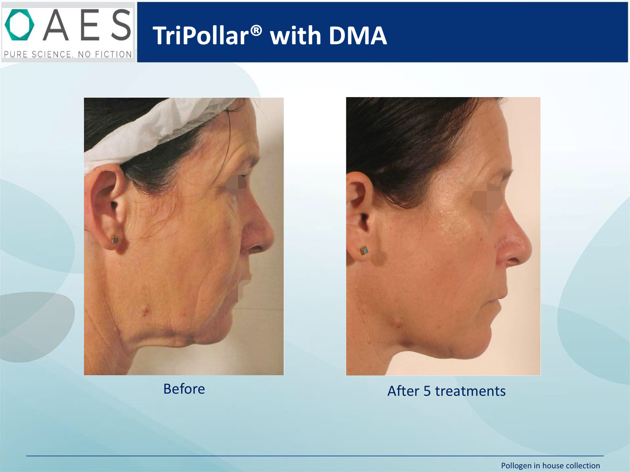 Before and after 5 treatments of tripollar radio frequency. Cheeks lifted, jawline tighter, double chin eliminated, mouth lines reduced, skin essentials clinic, wexford, ireland, exclusive stockist