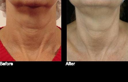 Tripollar radiofequency skin tightening, skin essentials by mariga, wexford