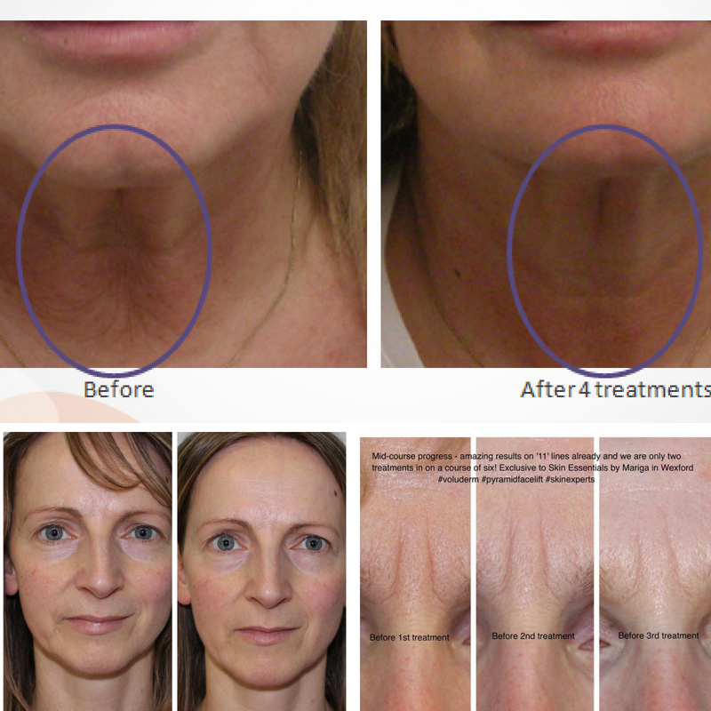 dramatic results from pyramid facelift, exclusive to skin essentials, wexford