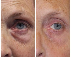Pic showing before and after close up on eye bags which have been eliminated using voluderm technology exclusive in Wexford to Skin Essentials by Mariga