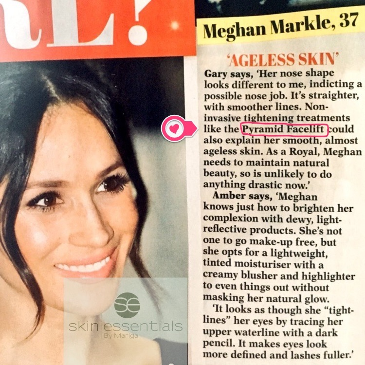 Meghan Markle pyramid facelift, Is Meghan Markle's ageless skin down to #pyramidfacelift treatments? Get this royal treatment exclusively in Ireland from Skin Essentials by Mariga, Wexford