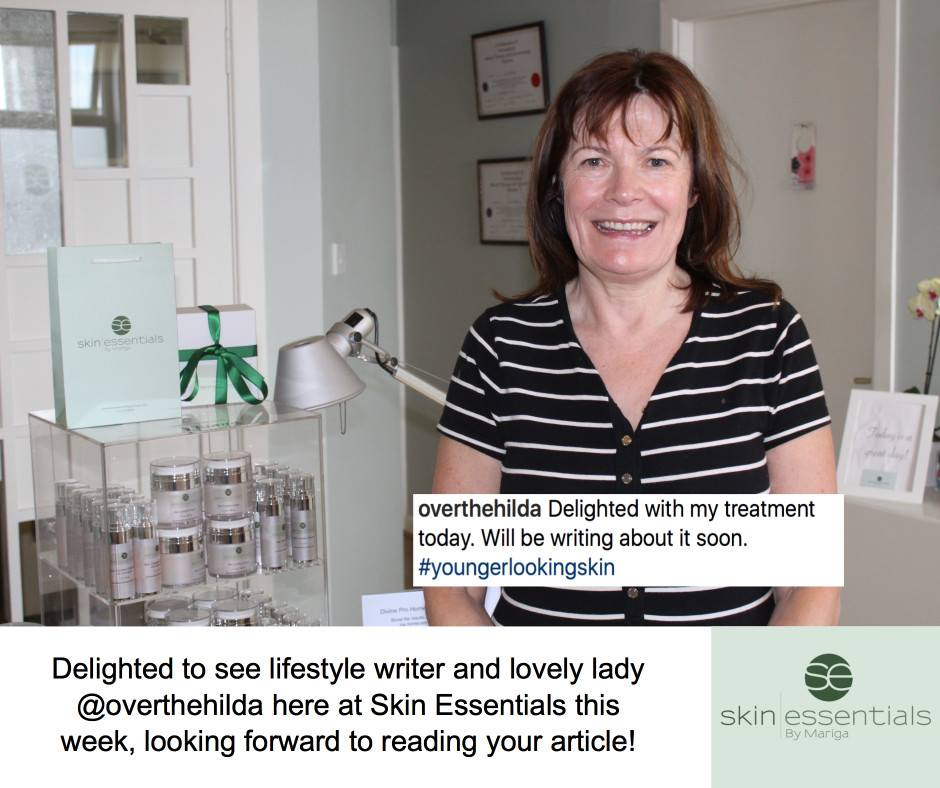 over the hilda tripollar facial review at skin essentials by mariga