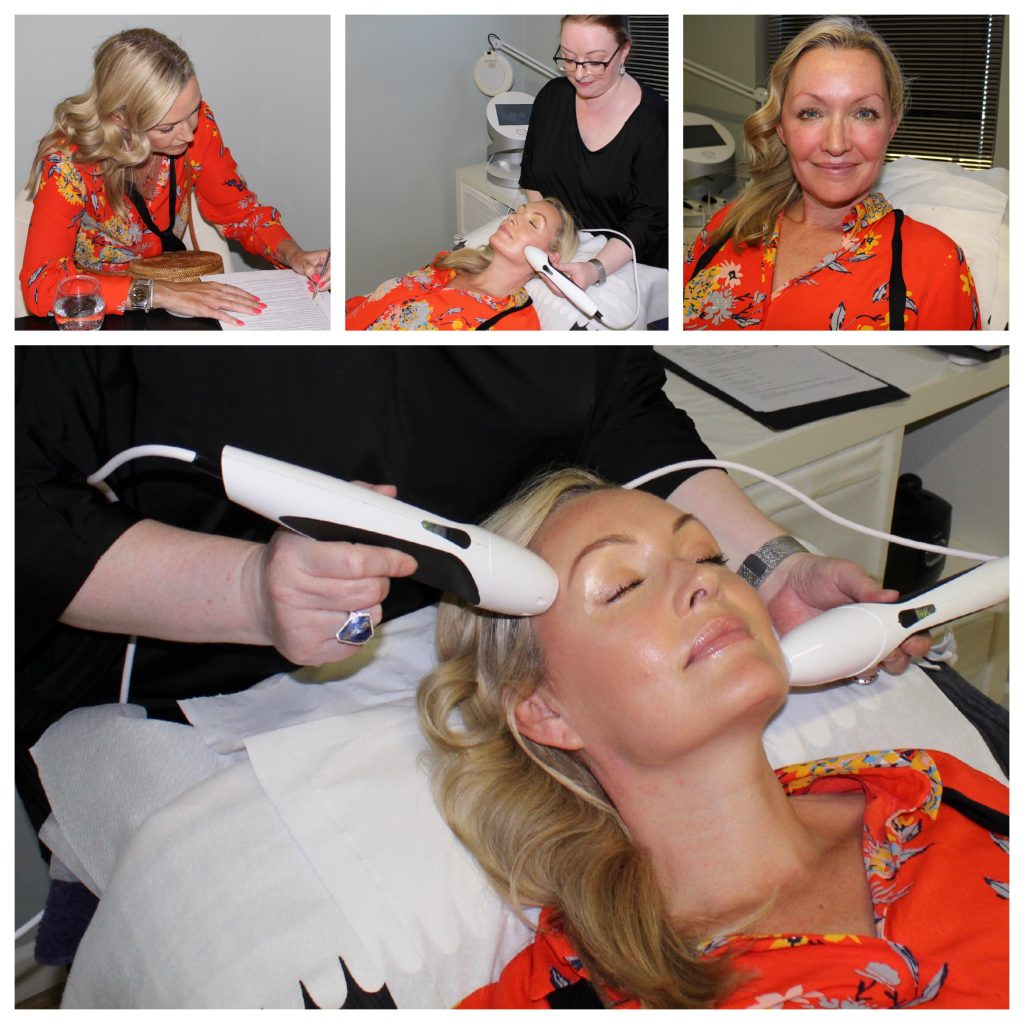 photo collage of actress, model and lifestyle influencer Vivienne Connolly having her pyramid facelift treatment with Mariga at Skin Essentials Wexford