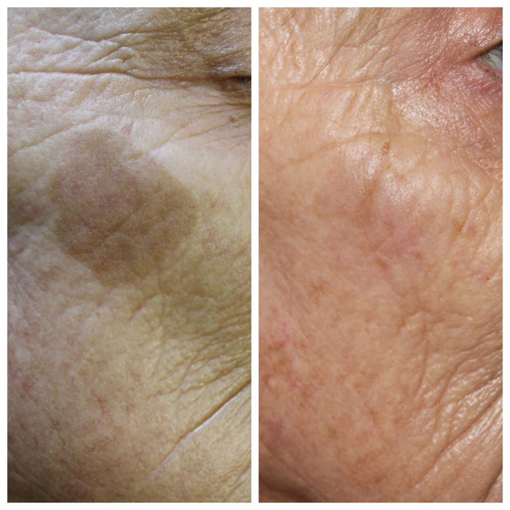 Before and after pic of large sun spot removed from female client face using cryotherapy at skin essentials by mariga skin clinic wexford ireland the home of ireland's leading skin experts
