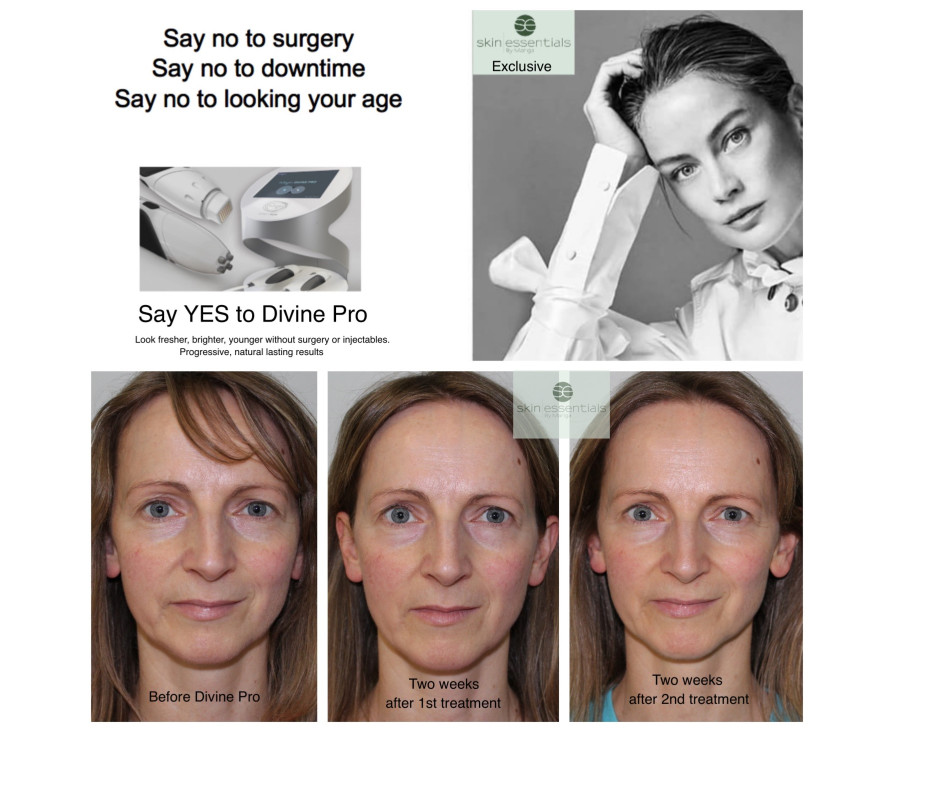 Actor Norma Sheahan before and after pics from Divine Pro Pyramid Facelift and Skin Essentials skincare products