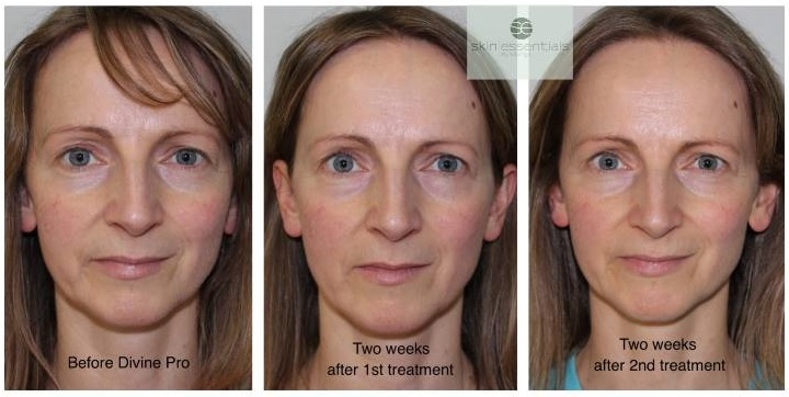 Norma Sheahan, Skin treatments, pyramid facelift results, skin essentials by mariga wexford