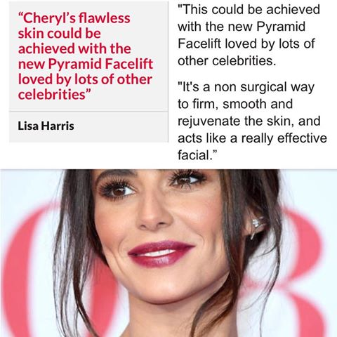 Cheek plumping and smoothing is a fab effect of both the Voluderm and Pyramid Facelift treatments as seen here Michelle Keegan celebrity speculation. Exclusive in Ireland to Skin Essentials by Mariga