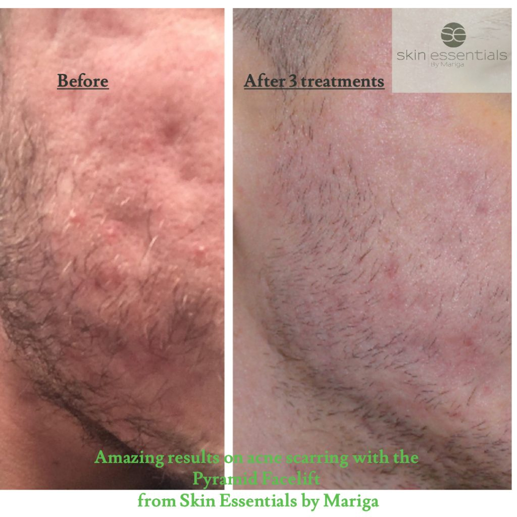 Before and after picture of indented acne scarring showing dramatic improvement in depth and colour after a series of Pyramid Facelift Treatments from Skin Essentials by Mariga in Wexford Town