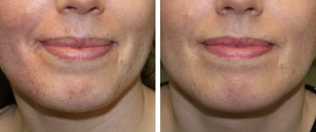 close up of the mouth peri oral area before and after two treatments of EPM mesotherapy hyaluronic acid and vitamin c infusion at Skin Essentials by Mariga, skin is noticeably smoother, more even in colour and texture and hydrated and plumped.