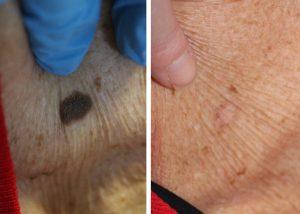 Age Spot, Milia, Skin Tag, Red Vein Removal