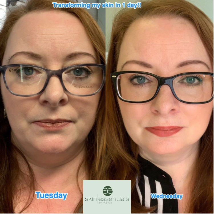 Before and after pic of Mariga Sheedy from Skin Essentials Wexford showing the difference after one treatment, hydrated, radiant, softer
