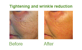 divine pro, lipofirmmed skin tightening, skincare, skin essentials by mariga, wexford