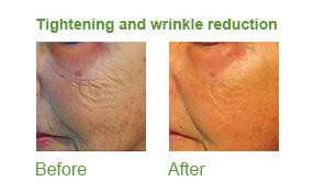 divine pro, lipofirmmed skin tightening, skincare, skin essentials by mariga, wexford