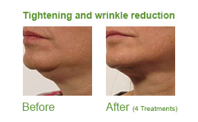 Lipofirmmed skin tightening, before and after, aesolutions, skin essentials by mariga, wexford