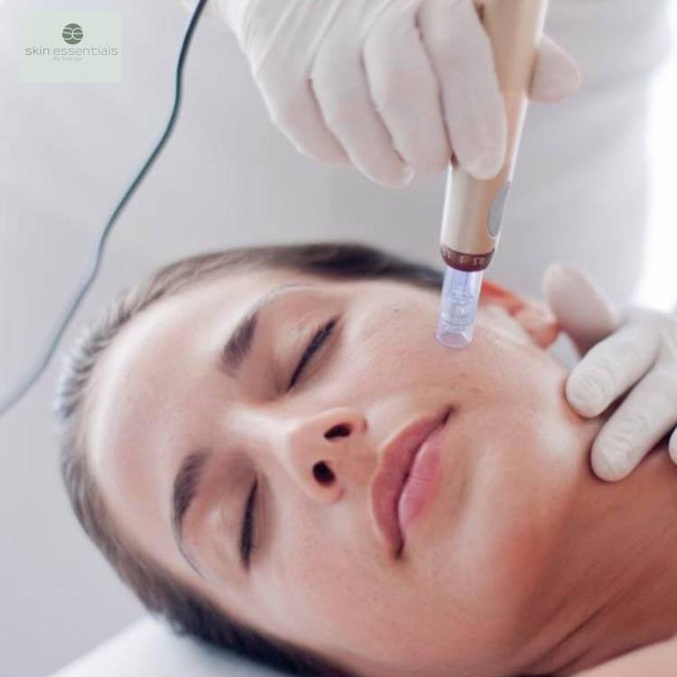 microneedling, skin essentials by mariga, wexford, antiageing