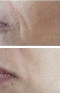 51 year old, before and one week after peptide infusion therapy, dermal peptide, anti-ageing