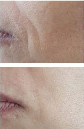 51 year old, before and one week after peptide infusion therapy