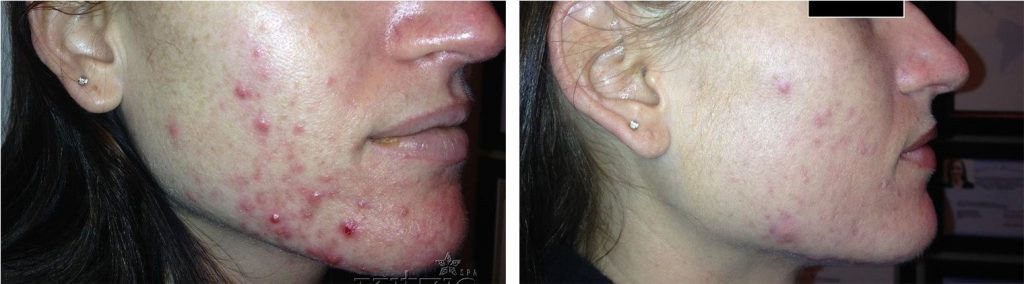 Before and after pic of jawline hormonal acne helped by using celluma light therapy for 8 weeks