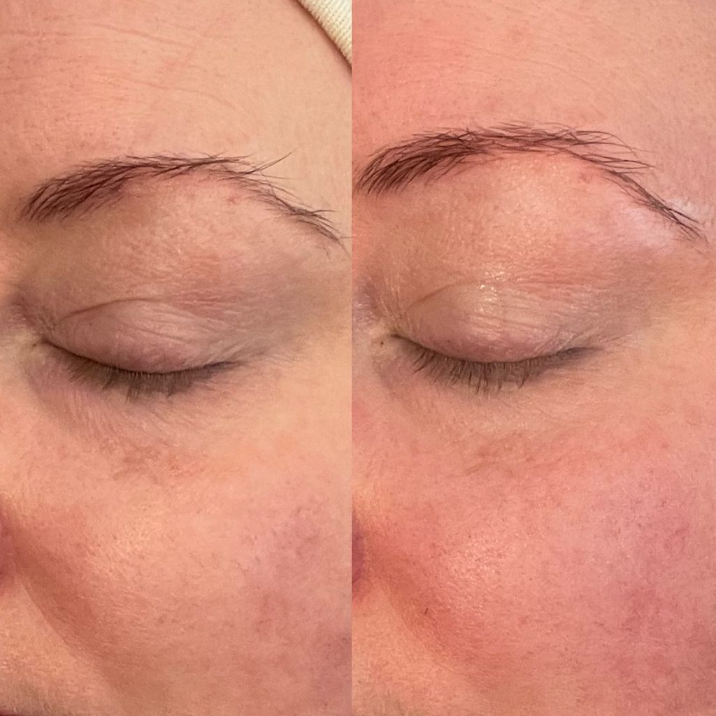 Close up of left brow and cheek before and after one crystal rose facial from skin essentials by mariga wexford.