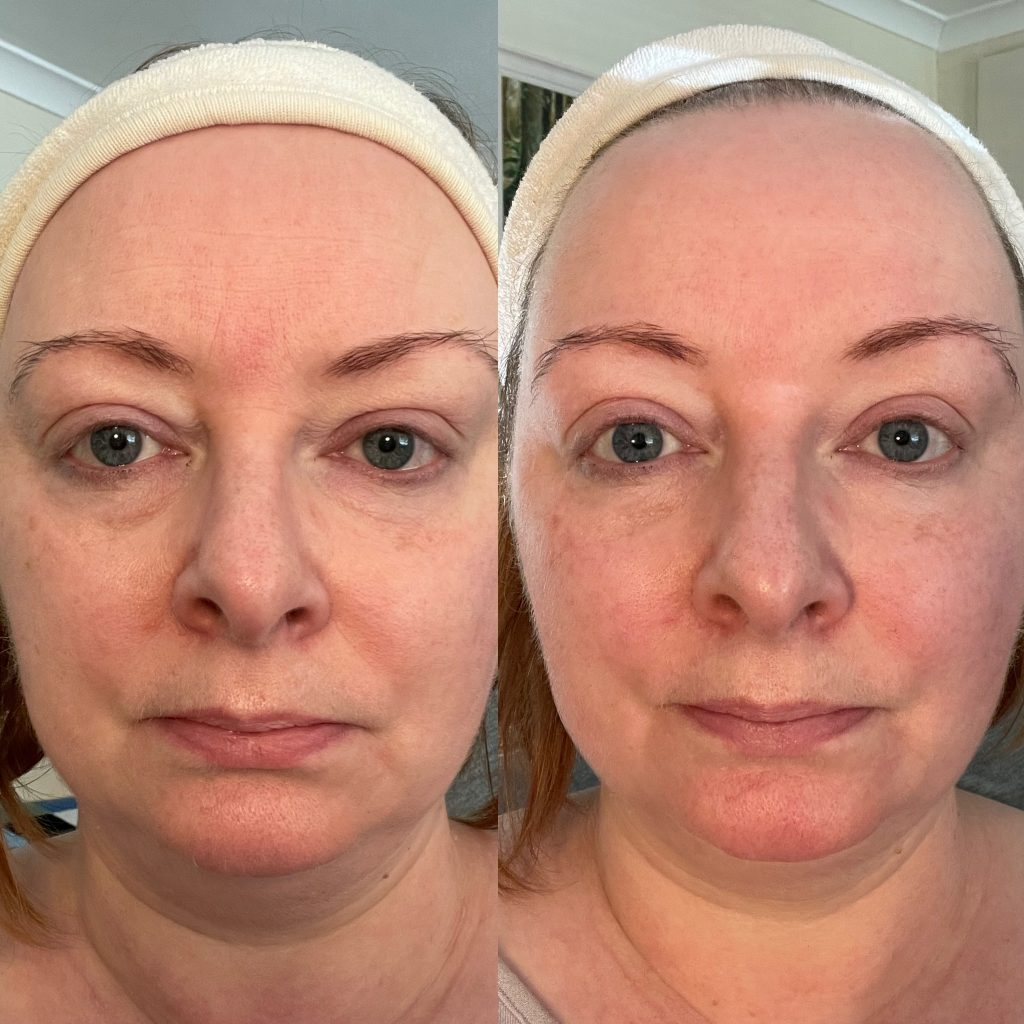 Close up of full face before and after one crystal rose facial from skin essentials by mariga wexford.