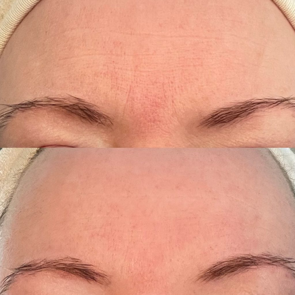 Close up of forehead lines reduced before and after one crystal rose facial from skin essentials by mariga wexford.