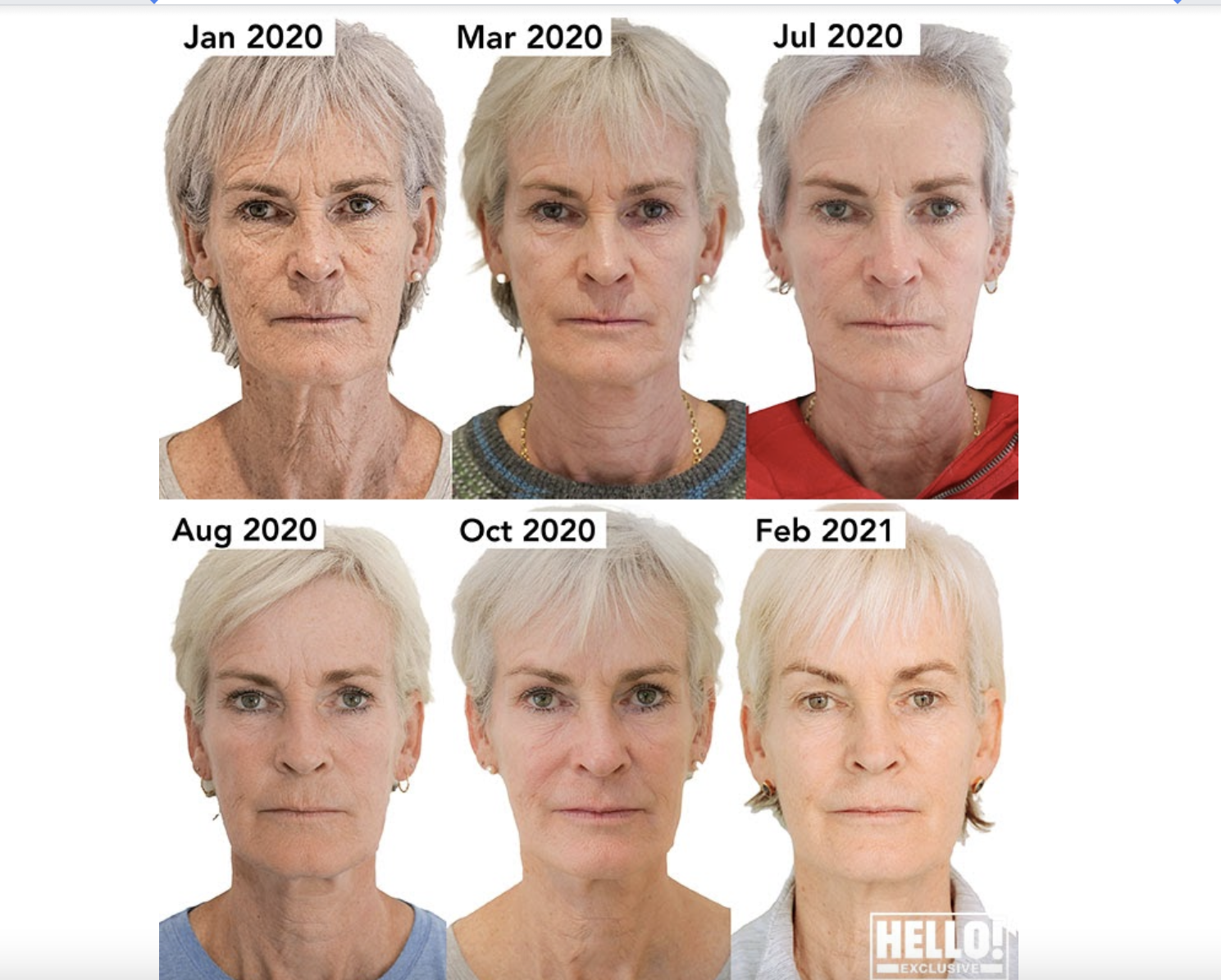fractional radiofrequency facial progression